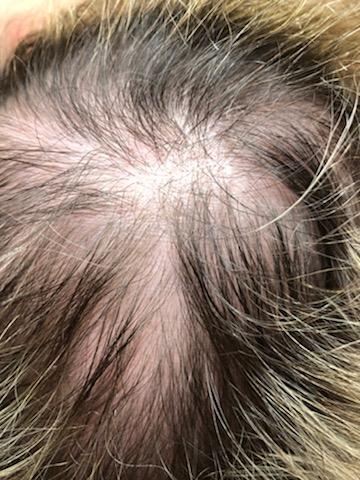 Rehvolta Poznań - Leczenie łysienia wypadania włosów